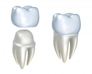 Dental crowns and tooth
