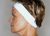 side view of a woman with her face marked for plastic surgery